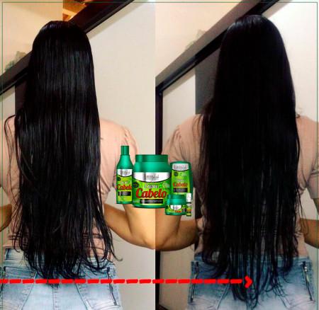 Forever Liss Kit Cresce Cabelo Grande + Tônico Capilar (4 Itens)