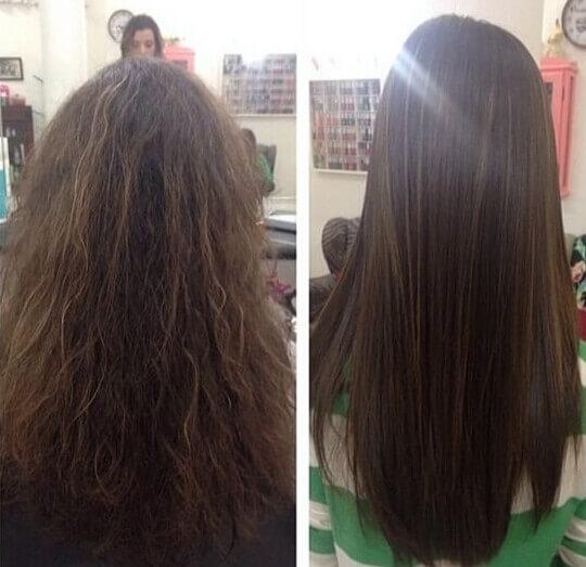 Exo Hair Antes e Depois