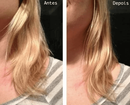 Antes e Depois Nppe